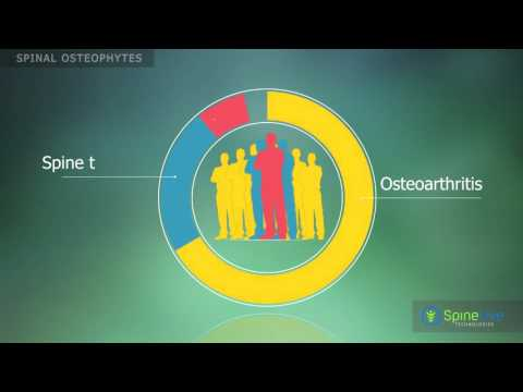 Thorakale Osteochondrose mit radikulären Syndrom Behandlung