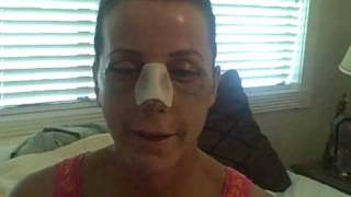 Facial Plastic Surgery: Recovery Day 7