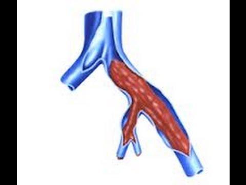 Hipertensão respiração terapêutico