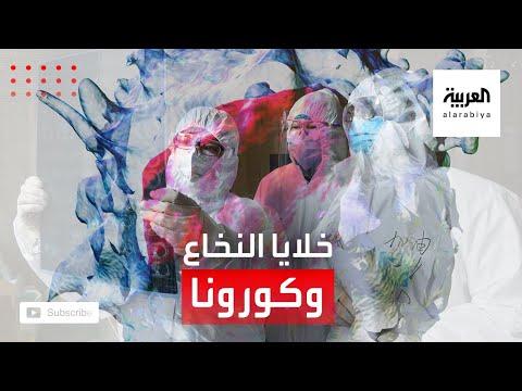 العرب اليوم - شاهد: هل لخلايا نخاع العظم دور في الإصابة بكورونا؟