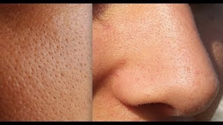 8 best scrubs to remove blackheads on nose - 320×180