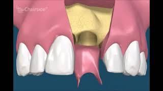 Имплантация сразу после удаления зубов за 1 день