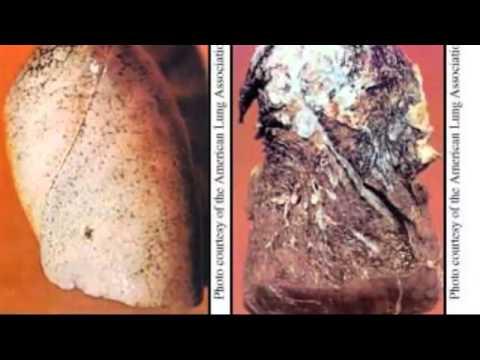 Schädel-Hirn-Hypertonie, seine Behandlung
