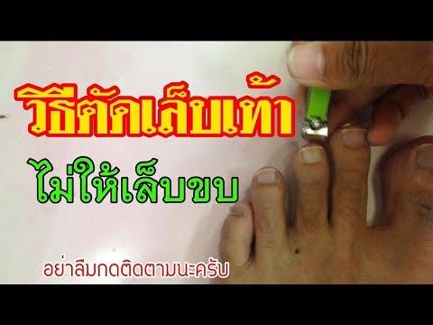 การรักษา hallux valgus วิดีโอเท้า