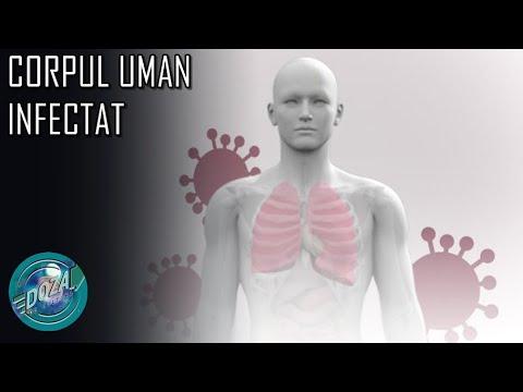 Human papilloma is