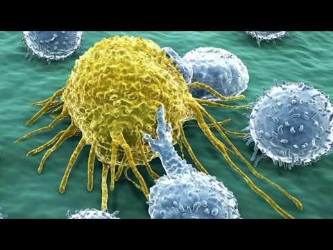 Humán papilloma vírus tumor