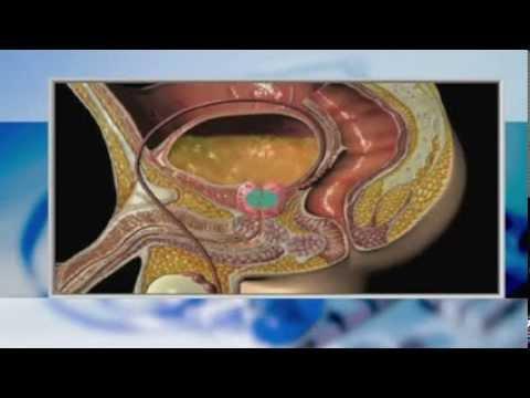 Масаж в областта на простатната жлеза