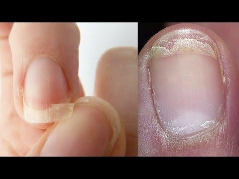 Dilaw toenails bilang isang lunas