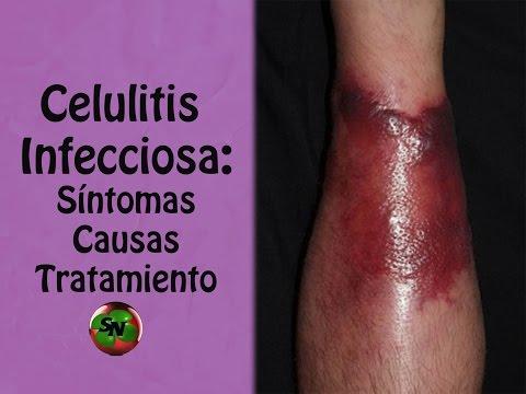 La psoriasis a los niños los síntomas y el tratamiento la profiláctica de la foto