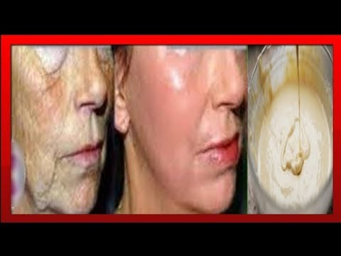Здоровье темные пятна на лице