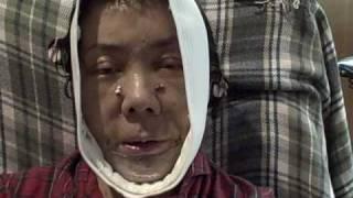 Nancy Ng Recovery Face lift diary