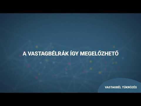 Erekciós gyakorlatok videó