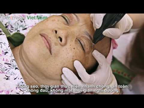 Video dùng công nghệ Nhấn mí Plasma điều trị mắt chảy xệ