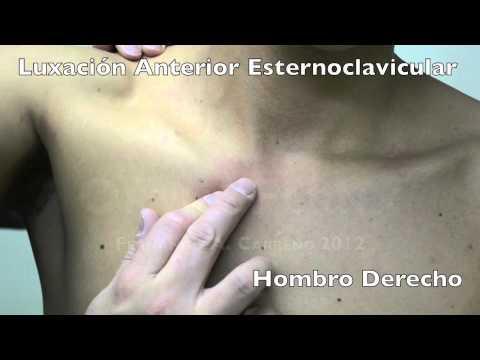 El aumento agudo de la dimensión del pecho