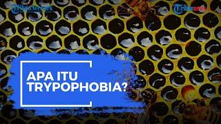 Apa Itu Trypophobia? Kenali Gejalanya dan Simak Penjelasan Berikut Ini!