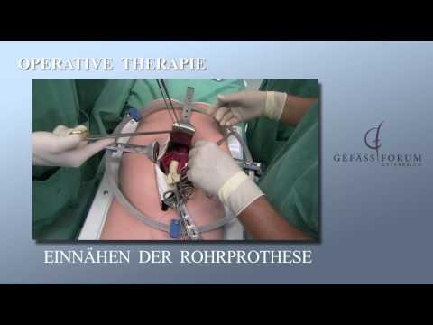 Rekonstruktion des thorakalen Aorta