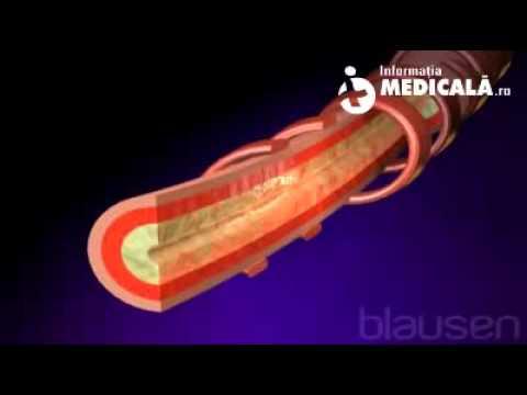 Remedii populare pentru hipertensiune lamaie miere
