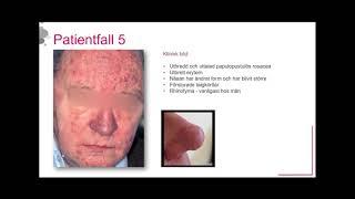 Man med kraftig inflammation och rhinofyma