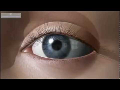 Восстановление зрения панков