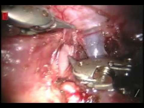Pulmonary Artery Repair