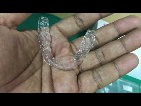 Orthodontic Tooth Aligner Treatment in chennai  #dentcarealigners #Toothalignment #invisible braces