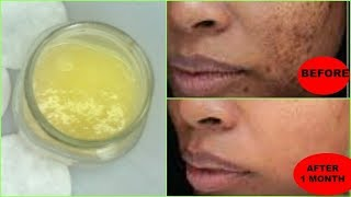 REMOVE DARK SPOTS, BLACK SPOTS, ACNE SCARS NATURALLY AND FAST, GET FLAWLESS SKIN Khichi Beauty