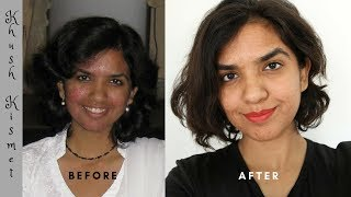 How I Cured My CYSTIC ACNE And ROSACEA For Good!
