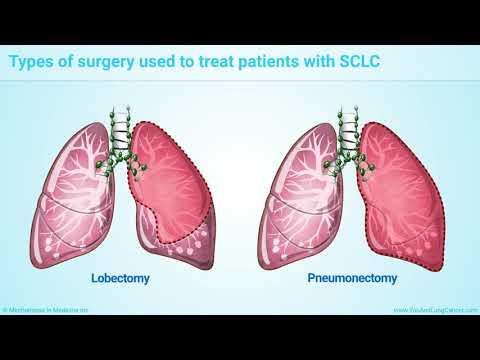 Cancer la plamani celule mici
