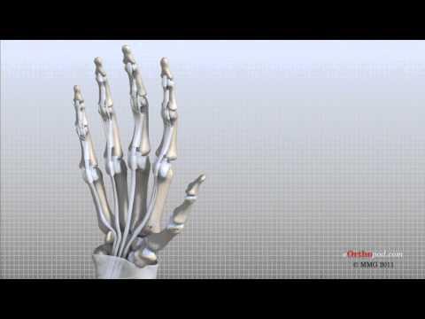 Osteoarthritis des Kniegelenks Übungen Video