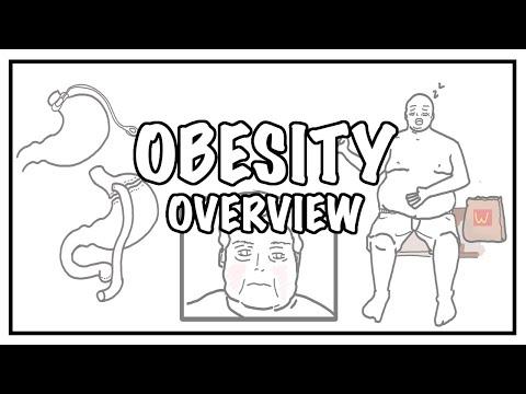 Podejście do otyłości i przyrostu masy ciała - przyczyny, czynniki ryzyka, BMI, powikłania i leczenie