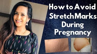 Lasya Talks | How to Avoid Stretch marks During Pregnancy |