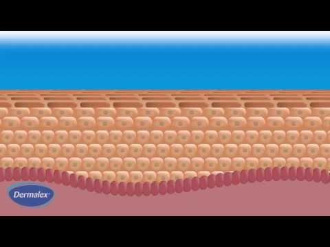 Berretto della pelle neurodermatitis risposte